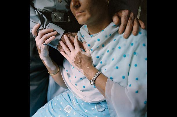 vitiligo_10